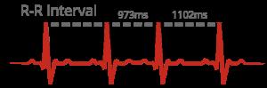heart beat intervals